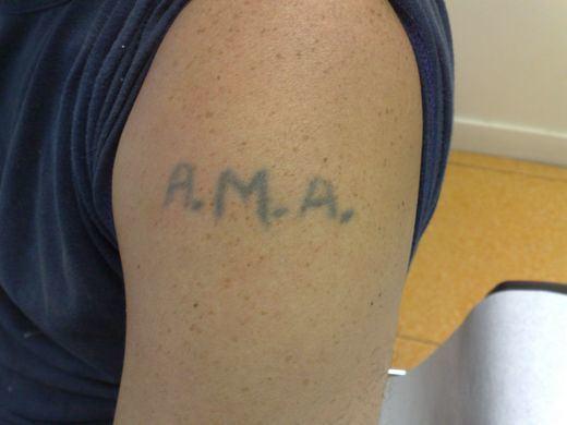 Un 70% de las personas tatuadas eliminan o rediseñan sus tatuajes