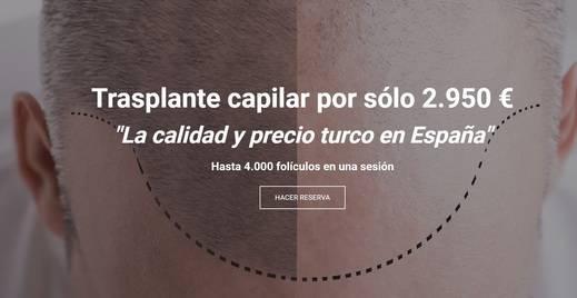 Estambul o el renacimiento del trasplante capilar, ahora en Málaga