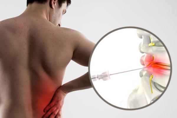 Tratamiento innovador para eliminar hernias discales en el día