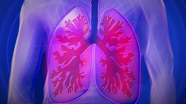 Expertos esperan que pronto el cáncer de pulmón se convierta en una 'enfermedad crónica'