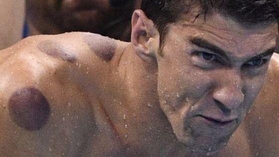 Tratamientos célebres: el famoso 'cupping' de Phelps carece de evidencia científica