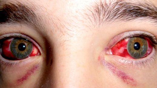 Fiebre hemorrágica de Crimea-Congo: ¿qué es y cómo se transmite esta enfermedad?