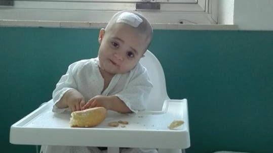 Primera victoria de Ana, la niña de 16 meses con un extraño tumor cerebral