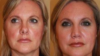 La Rinoplastia es capaz de corregir un tabique nasal desviado