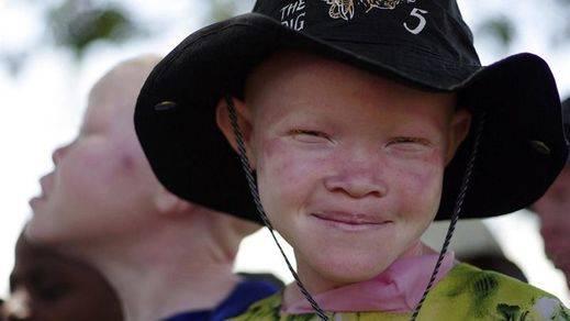 Los asesinatos rituales: la persecución del albinismo en África