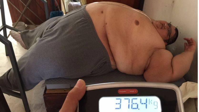 Adelgaza más de 200 kilos... pero sigue siendo el hombre más gordo del mundo ¡con 376!