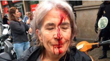 La ONU pide una investigación sobre la violencia en Cataluña