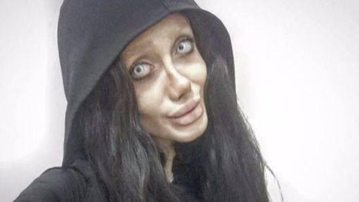 Una chica iraní se opera hasta 50 veces para tener el rostro de Angelina Jolie