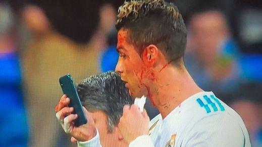 La herida y la sangre de Ronaldo se convierten en carne de debate y memes en Internet