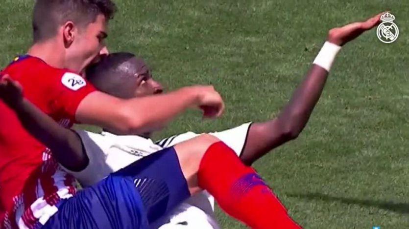 Muerden a Vinícius en la cabeza durante el derbi de filiales Madrid-Atlético