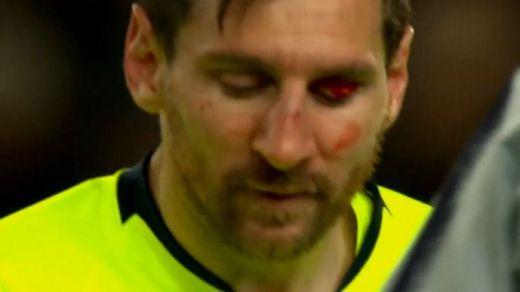 El Barça suda sangre para dar un paso importante para colarse en semifinales de Champions (0-1)