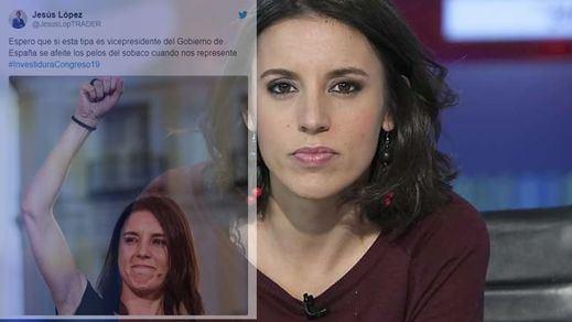 Los pelos del sobaco que no permiten a Irene Montero ser ministra de España