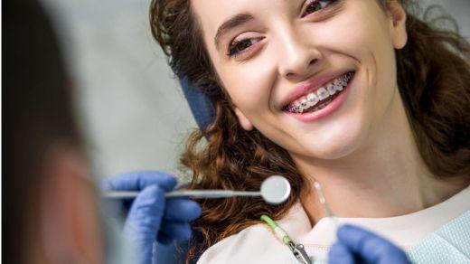 ¿Cómo han evolucionado los brackets metálicos? - Novedades de la ortodoncia