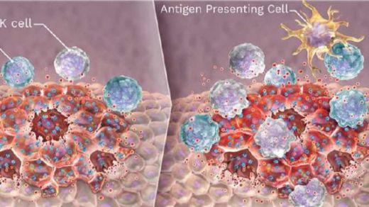 Virus oncolíticos: dos ensayos en Valencia abren una nueva oportunidad contra el cáncer de mama