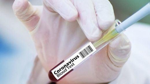 China autoriza pruebas clínicas de 2 vacunas para el coronavirus covid-19
