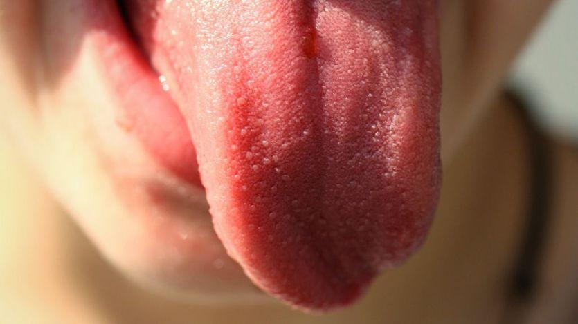 Un estudio español encuentra nuevos síntomas del covid: aumento del tamaño de la lengua y otras lesiones