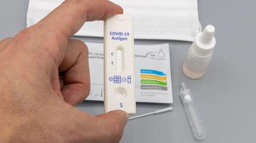 Luz verde a la venta de los test para el autodiagnóstico del coronavirus en farmacias
