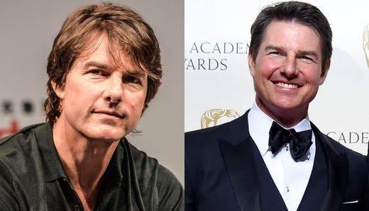 La nueva cara de Tom Cruise: ¿otra víctima de la cirugía?