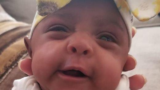 La bebé más pequeña del mundo: pesó lo mismo que una manzana