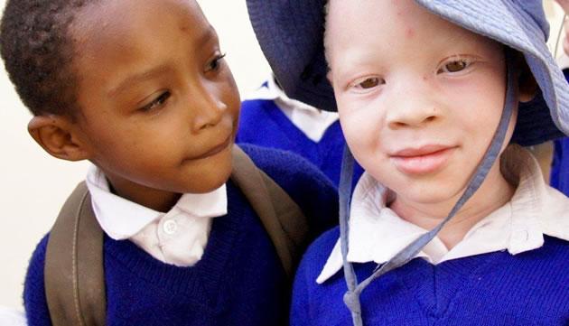 El 'Proyecto Albinos de Tanzania' gana un Premio Excellens
