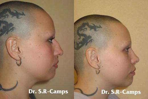 ¿Es aconsejable la cirugía estética en menores?