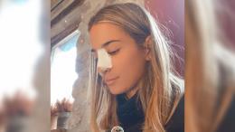 María Pombo explica por qué se ha hecho una nueva operación de cirugía estética