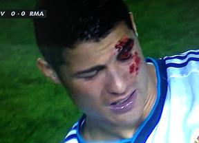 Las imágenes de Cristiano Ronaldo con sangre dan la vuelta al mundo