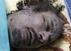 La foto del día: El cadáver de Gadafi