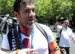 Los fotógrafos liberados tras retratar abusos policiales en los escraches tachan de