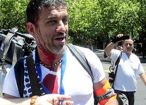 Detienen a Raúl Capín, fotoperiodista que mostró abusos policiales en los escraches