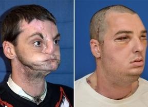 El trasplante de cara 'más exhaustivo del mundo'