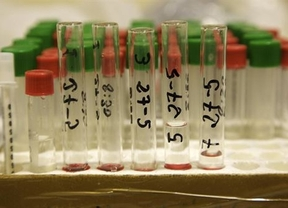 Desarrollan un análisis de sangre para detectar el cáncer de mama