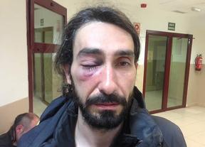 Nuestro compañero Kike Rincón, fotógrafo de Madridiario.es, agredido por violentos tras la Marcha por la Dignidad