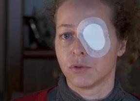 ... pero la Generalitat niega que la mujer herida en un ojo hubiera recibido un disparo