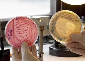 A la carne de caballo en las hamburguesas podría sumarse la bacteria E.coli