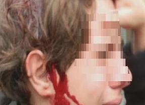 Una porra rebotada hirió al niño 'piquete'