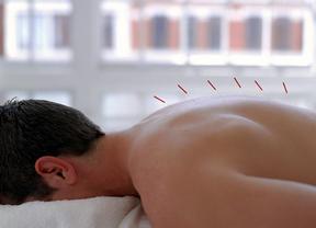 La acupuntura, una medicina alternativa ¿más?