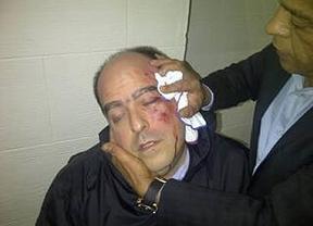 A golpes en la Asamblea Nacional de Venezuela