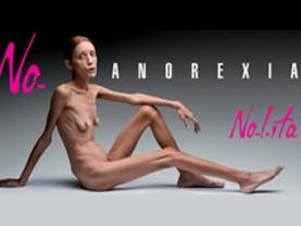 Reclutan modelos en clínicas de anorexia
