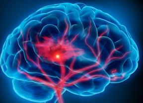 La neuropsicóloga Vinyes Junqué da en Diariocrítico las claves de la temida y desconocida esclerosis múltiple